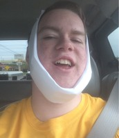 Trevor manages a smile after four tooth extractions.