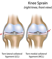 Sprain
