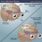 Normal vs Albinism Eyes