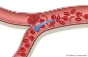 what is blood vessel disease ?