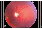 The cherry red spot in the center of the eyes macula