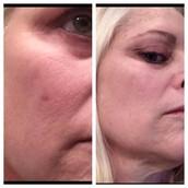 Skin Cancer Scar GONE!