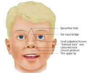 Facial defects of people with Down Syndrome