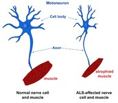 Facts About ALS