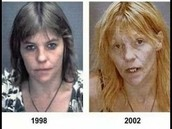 4yrs of alcohol abuse