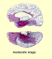 Middle Stage Brain