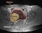 Cat Scan of the bladder