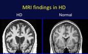 What is Huntington's Disease?