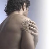Delete Tattoo Removal & Laser Salon