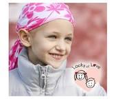 A girl with alopecia areata