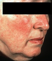 Subtype 1: Facial Redness