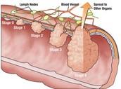 Is Colon Cancer Treatable or Curable?