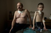 Father and son, just had thyroid cancer surgery