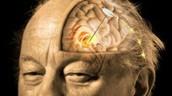 Punt del cervell on es troba l'epicentre de l'Alzheimer
