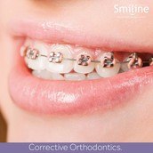 ORAL HYGEINE MAINTENANCE IN ORTHODONTICS