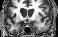 X-Ray of Huntington disease
