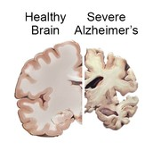 Healthy vs. Alzheimer's
