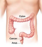 General Statements Regarding Colon Cancer