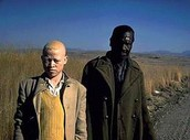 Do I have Albinism?