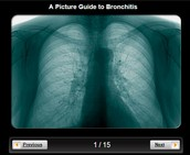 The lungs during bronchitis