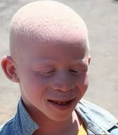 Boy With Albinism