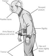 Symptoms that come with Parkinson's Disease