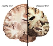 Plaques and clusters form in the area of the brain that forms memory.