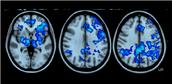 Your brain on mushrooms