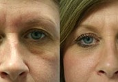 Rejuvenation of the Eyes: General Consideration – Blepharoplasty in San Diego ( Eyelid Surgery )