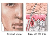 Basal cell