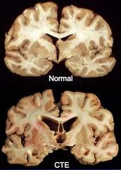 Term #1: Chronic Traumatic Encephalopathy