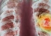 The lung picture