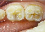 grinding teeth and also causes molars to rot