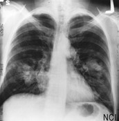 Lung Carcinoid Tumor