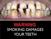 This is what happens to your smile