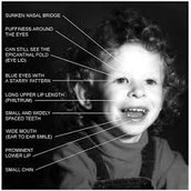 Side effects or Symptoms