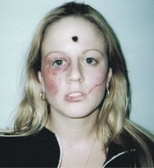 Bullet wound, swollen and bruised eye and cheek, swollen lip, scar