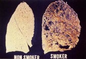 Lung Change of Tobacco