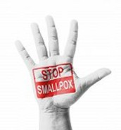 Smallpox: Preventing the Disease