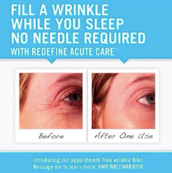 REDEFINE Acute Care will launch to the general public January 2015, but YOU can get it earlier!