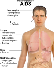 Signs and Symptoms of AIDS