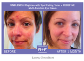 Unblemish Regimen + Redefine Multi-Function Eye Cream