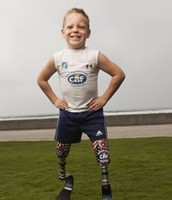 Child with prosthetic legs