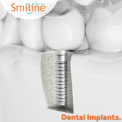 Who can get a Dental Implant?
