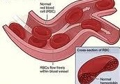 The Symptoms for sickle cell disease
