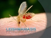 ¿Que es la Leishmaniasis?