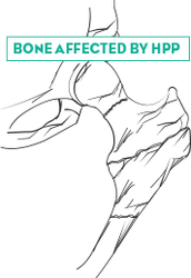 What is Affected By HPP