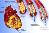 Cardiovascular disease diagram