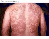 Leprosy on back