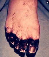 Muscle and Blood loss in the Toes